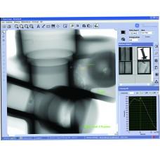 Software para Arquivamento Digital e Aprimoramento de Imagens de Raio X GE VISTAPLUS V
